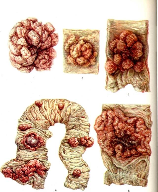 Первые симптомы и признаки рака кишечника: особенности лечения, операция, прогноз выживаемости