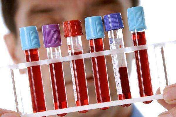 Киста прямой кишки: причины, симптомы и лечение