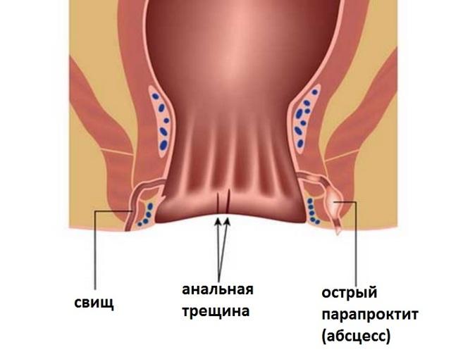 Чем отличается свищ от геморроя и почему он может появится после операции
