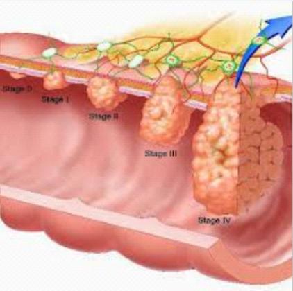 Причины появления алой крови при дефекации с болью и без нее