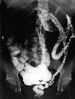 Болезнь Крона: симптомы, диагностика и лечение