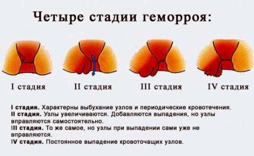 Геморрой на начальной стадии: симптомы, фото, лечение и профилактика