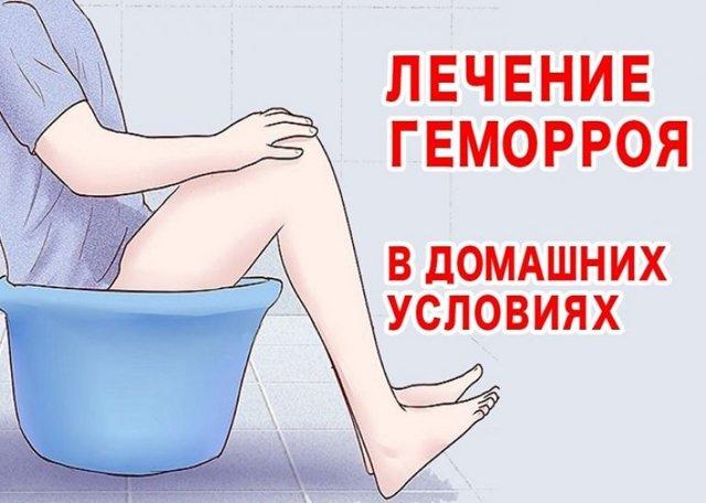 Как применять расторопшу при лечении геморроя?