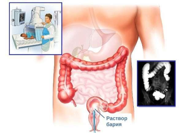 Что такое ирригоскопия кишечника, как подготовиться к процедуре