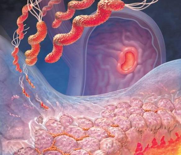 Особенности лечения дисбактериоза кишечника у взрослых