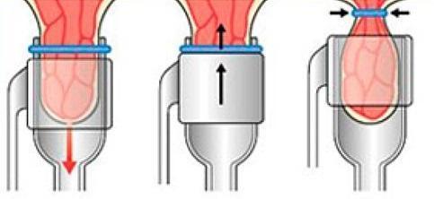 Дезартеризация геморроидальных узлов методом HAL RAR