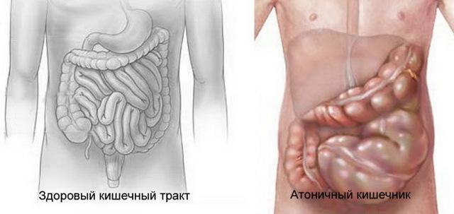 Причины появления атонии кишечника и методы её лечения