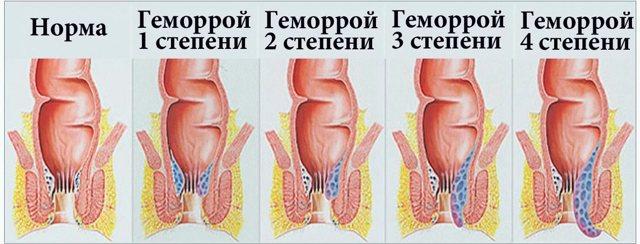 Какие свечи используют для лечения геморроя после родов