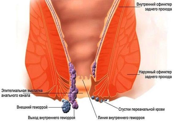Почему появляются геморроидальные узлы?