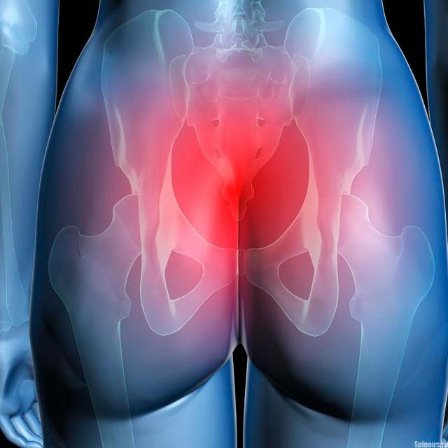 Причины боли в области копчика при сидении и вставании