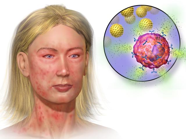 Свечи и мазь Индометацин при геморрое: инструкция по применению