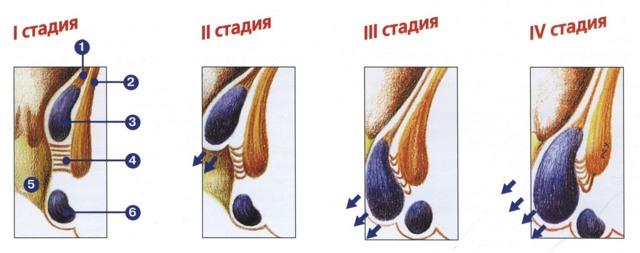Можно ли вылечить геморрой на 4 стадии? Обзор методик лечения заболевания