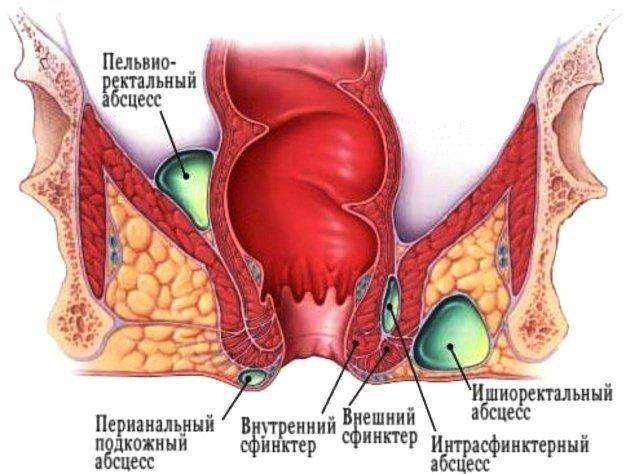Подкожный парапроктит
