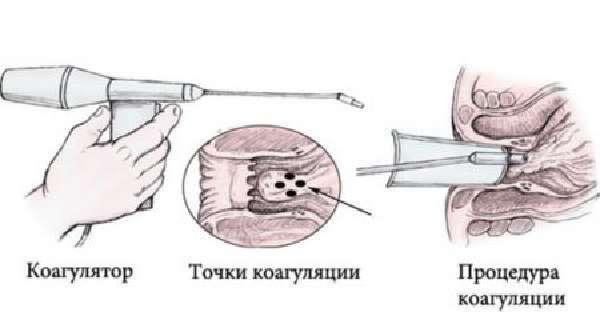 На какой стадии можно вылечить геморрой без операции