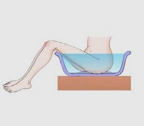 Отличительные особенности и методы лечения наружного и внутреннего геморроя