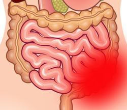 Непроходимость кишечника у взрослых и детей: особенности лечения, операция