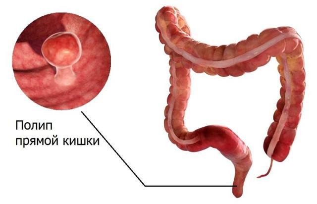 Что показывает компьютерная томография кишечника (КТ) и чем она отличается от колоноскопии