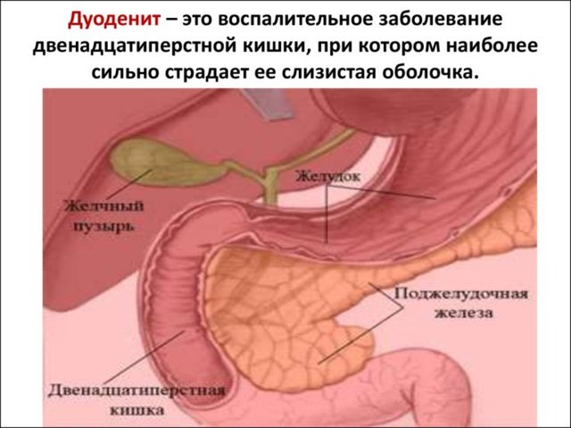 Воспаление двенадцатиперстной кишки: симптомы, особенности лечения дуоденита