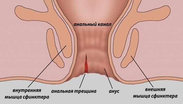 Причины болезненных ощущений в области прямой кишки