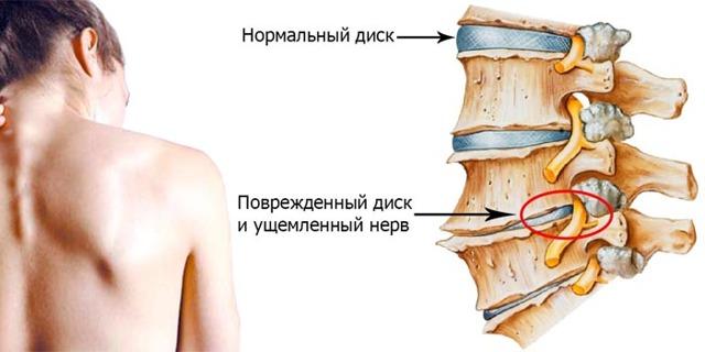 Может ли при геморрое болеть поясница, спина или крестец?