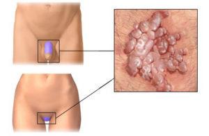 Причины и лечение остроконечных кондилом у женщин в интимном месте