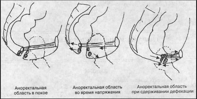 Особенности лечения сфинктерита прямой кишки