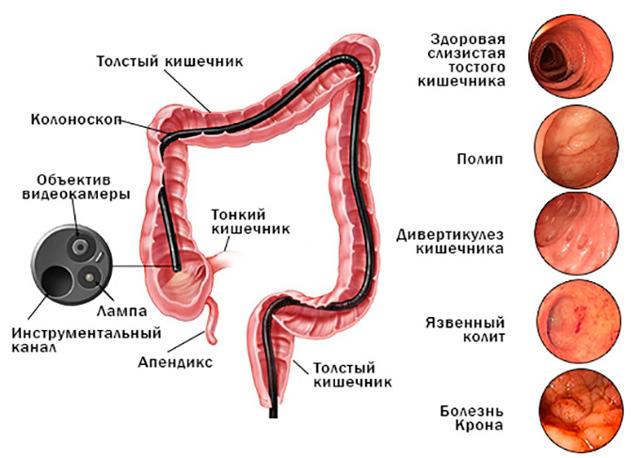 Рак сигмовидной кишки: первые симптомы, особенности лечения, операция, прогноз выживаемости