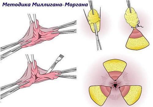 В каких случаях рекомендуется оперативное лечение геморроя?