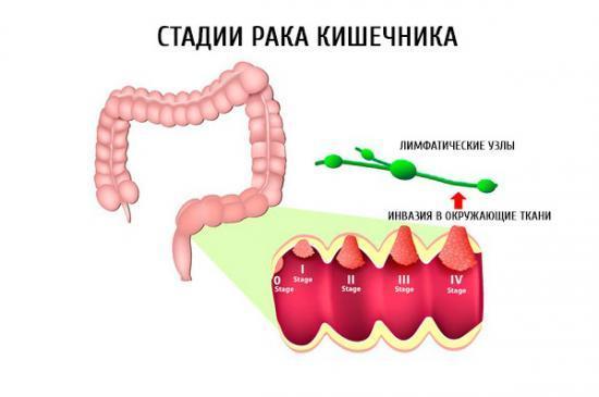 Причины появления крови в кале и её выделения из заднего прохода