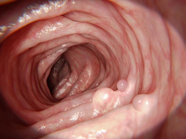 Причины появления полипов в кишечнике: симптомы, особенности лечения, видео удаления полипа