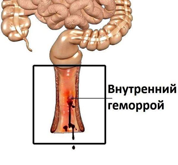 Как распознать первые признаки геморроя, на какие симптомы обратить внимание?