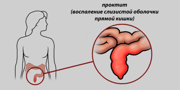 Причины выделения слизи, крови, маслянистого содержимого из анального отверстия