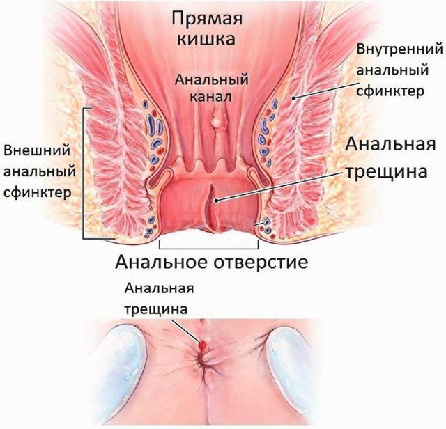 Причины выделения крови во время и после дефекации