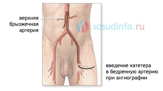 Особенности лечения мезентериального тромбоза кишечника