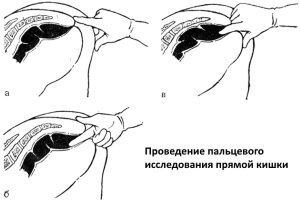 Когда проводят ректальное пальцевое исследование?
