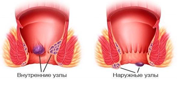 Грыжа прямой кишки: симптомы, методы лечения и профилактика