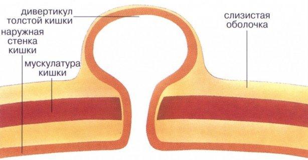 Симптомы и лечение дивертикулеза толстого кишечника
