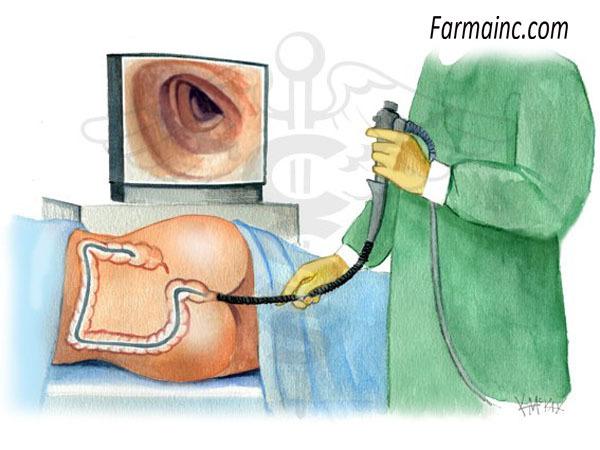 Почему у взрослых возникают кишечные колики? Первая помощь и методы лечения