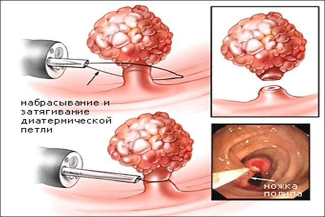 Диагностика и лечение множественных полипов толстого кишечника