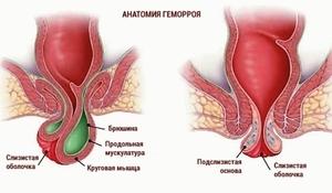 Внутренний геморрой: причины, симптомы и схемы лечения