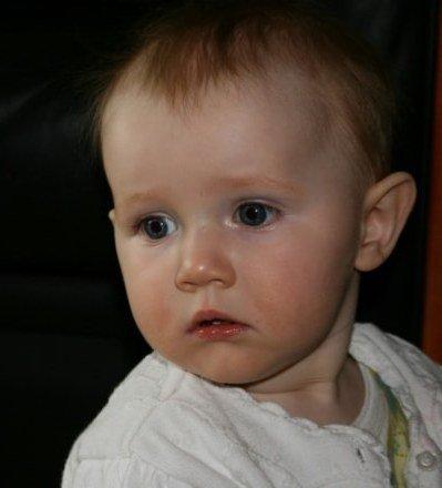 Особенности лечения парапроктита у детей: как проявляется болезнь у грудничков и детей до года