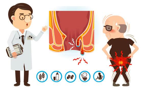 Как избежать рецидива геморроя и предотвратить его появление после операции?