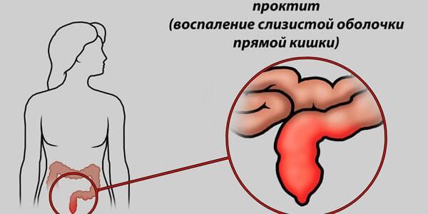 Симптомы и лечение эрозии в прямой кишке