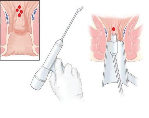 Методы малоинвазивного лечения геморроя