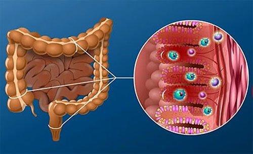 Симптомы и особенности лечения кандидоза кишечника: препараты, диета, профилактика