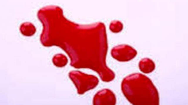 Какого цвета кровь при геморрое? И какие заболевания скрываются за этим?