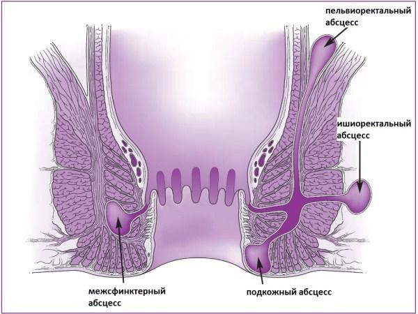 Как проходит операция по удалению парапроктита