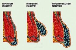 Какие мази эффективнее для лечения геморроя после родов