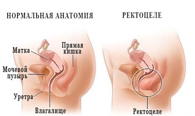 Ректоцеле у женщин: лечение, операция, прогноз, профилактика