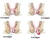 Степени, симптомы и особенности лечения хронического геморроя
